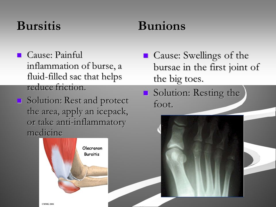 Bursitis Bunions Cause: Painful inflammation of burse, a fluid-filled sac that helps reduce friction.