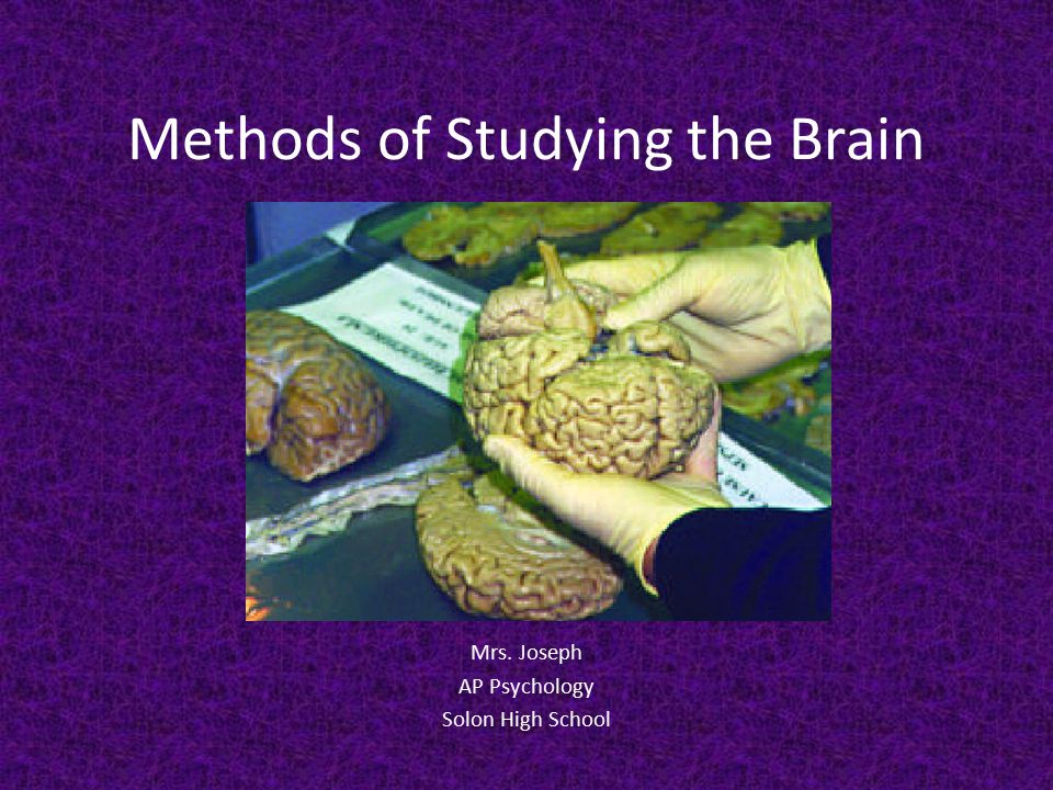 Methods of Studying the Brain Mrs. Joseph AP Psychology Solon High School
