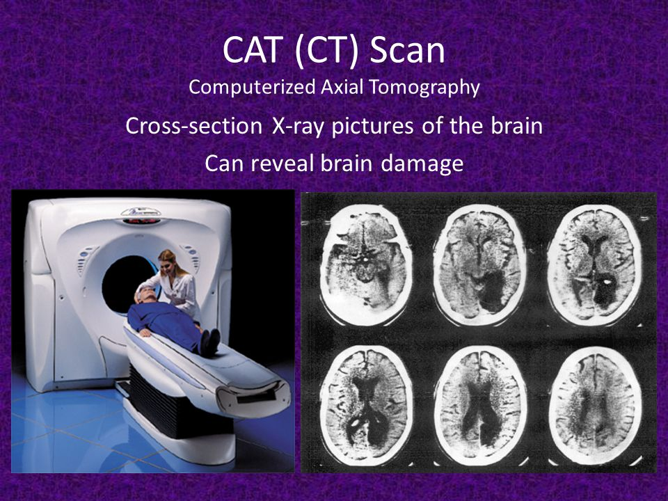 CAT (CT) Scan Computerized Axial Tomography Cross-section X-ray pictures of the brain Can reveal brain damage