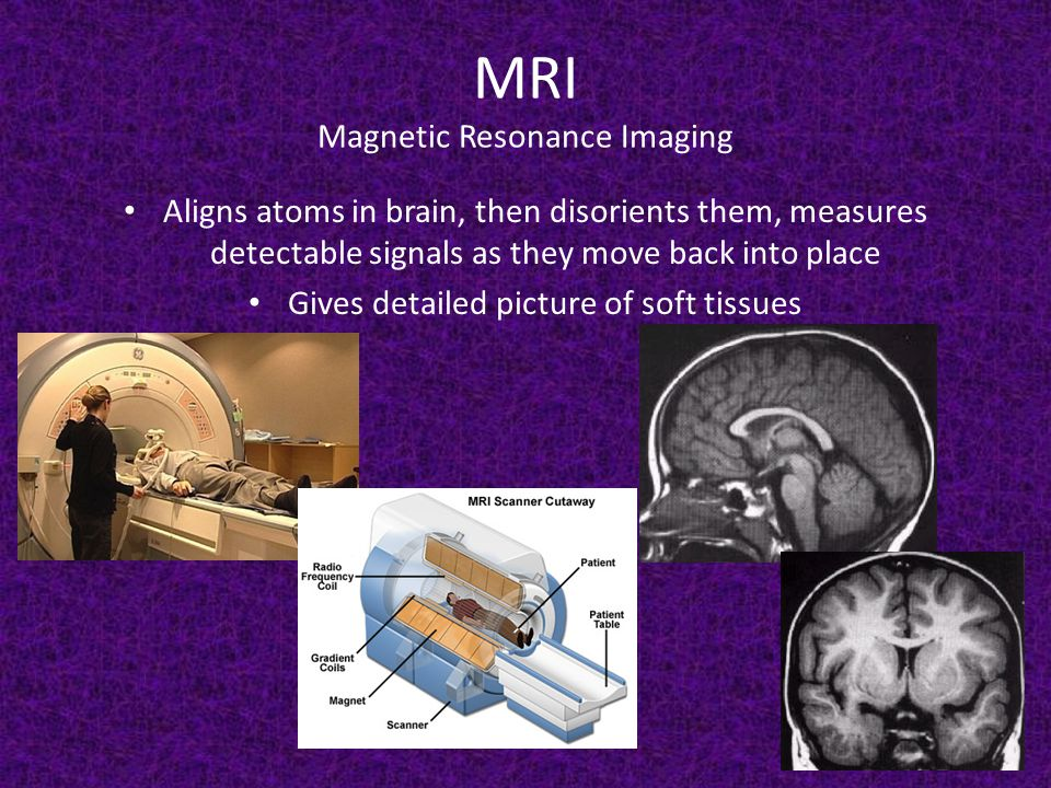 MRI Magnetic Resonance Imaging Aligns atoms in brain, then disorients them, measures detectable signals as they move back into place Gives detailed picture of soft tissues