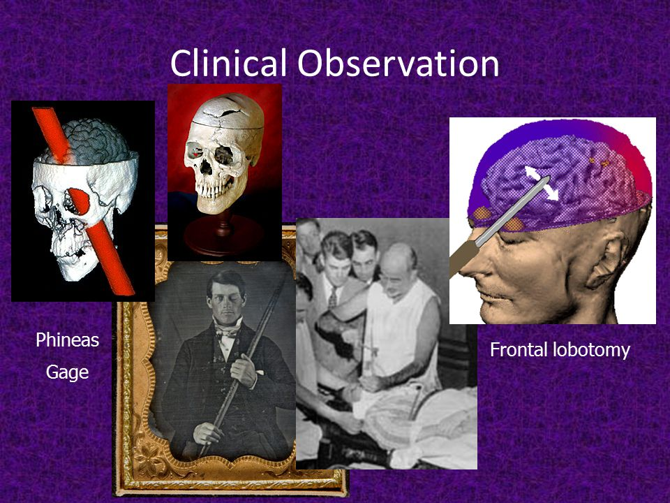 Clinical Observation Frontal lobotomy Phineas Gage