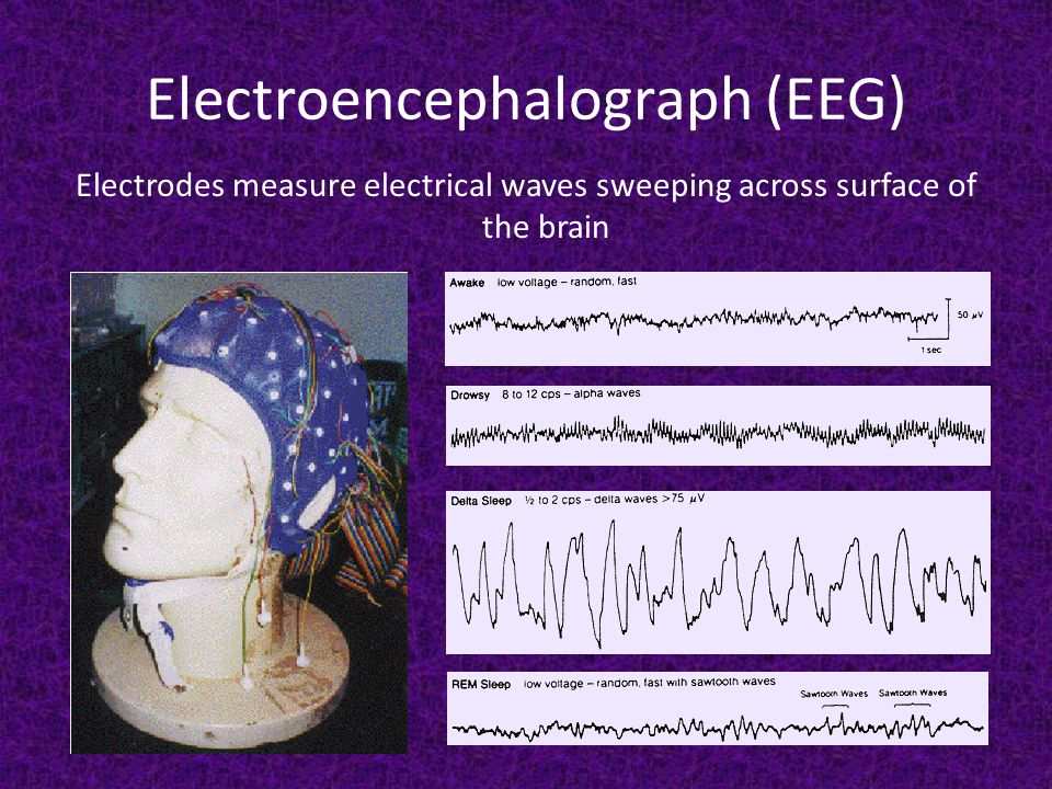 Electroencephalograph (EEG) Electrodes measure electrical waves sweeping across surface of the brain
