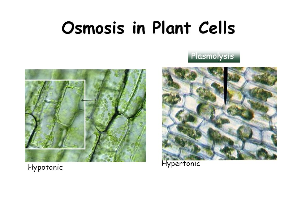 Osmosis in Plant Cells Hypertonic Hypotonic Plasmolysis
