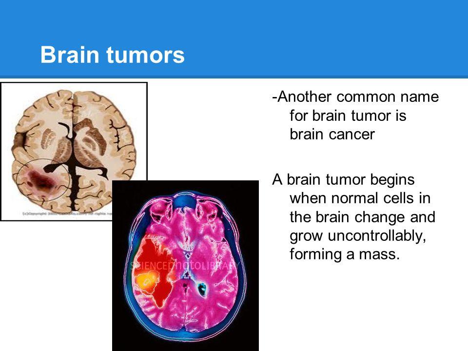 Brain tumors by Gabriela perez Diaz 03/06/13 3rd period. - ppt ...