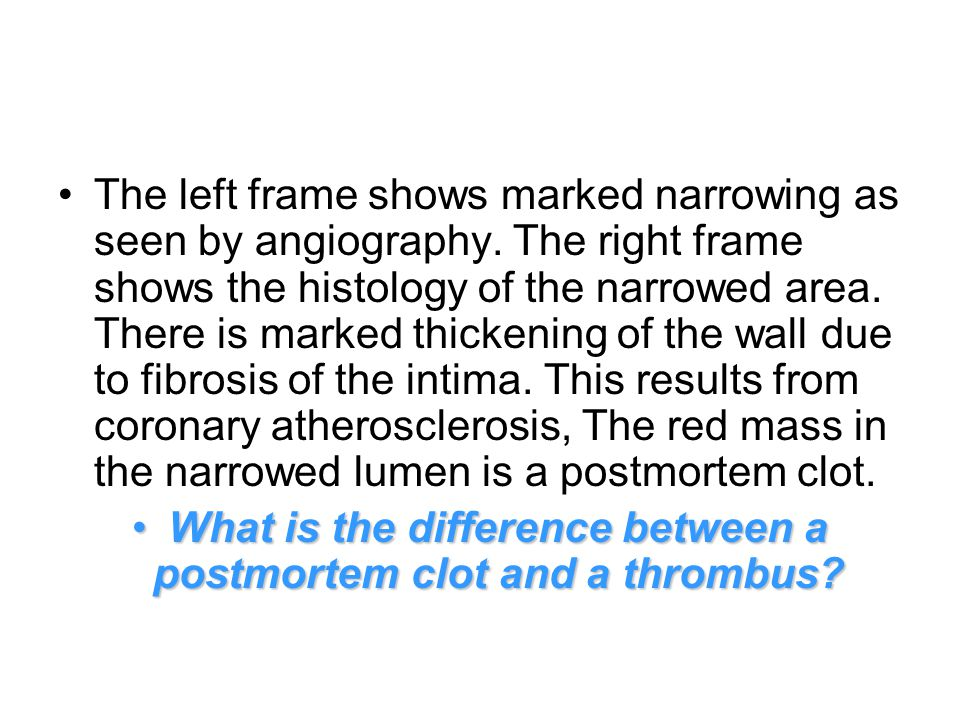 The left frame shows marked narrowing as seen by angiography.