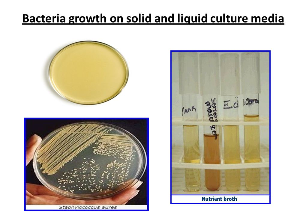 Bacteria growth on solid and liquid culture media