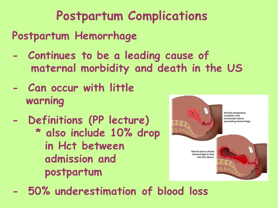 postpartum complications. postpartum complications: principles the, Skeleton