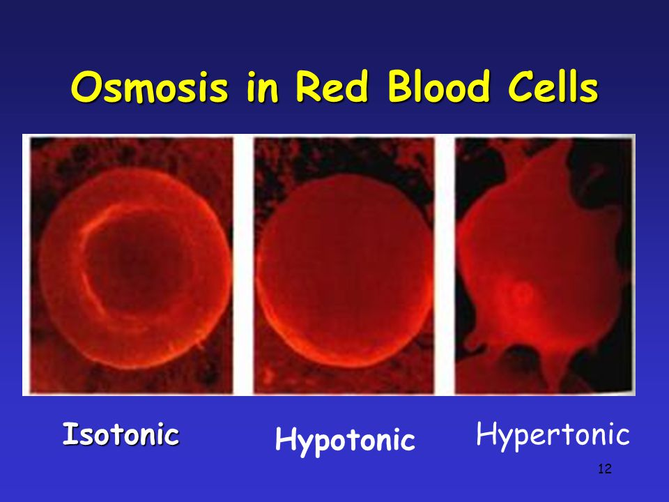 12 Osmosis in Red Blood Cells Isotonic Hypotonic Hypertonic