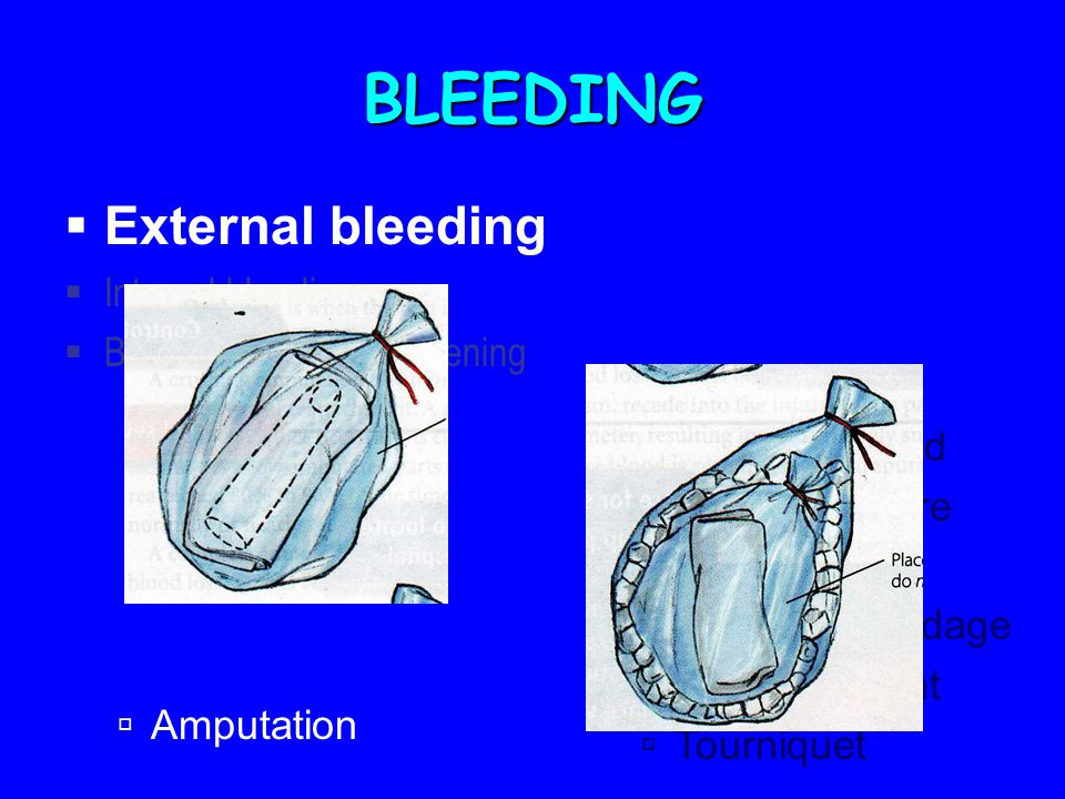 BLEEDING  External bleeding  Internal bleeding  Bleeding from body opening  Gloves  Expose wound  Direct pressure  Elevation  Pressure bandage  Pressure point  Tourniquet  Amputation