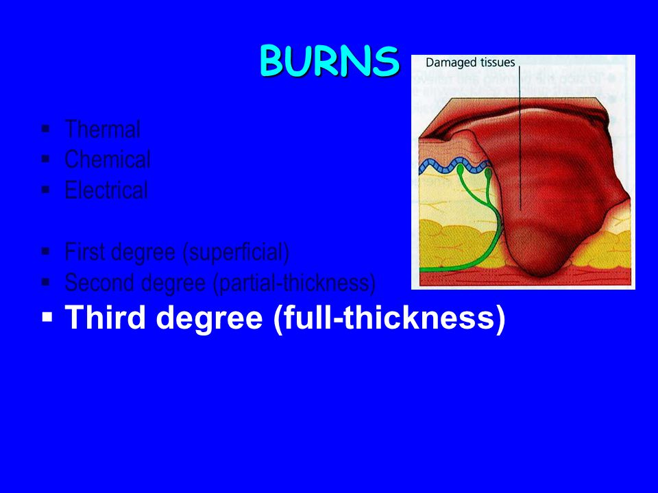 BURNS  Thermal  Chemical  Electrical  First degree (superficial)  Second degree (partial-thickness)  Third degree (full-thickness)