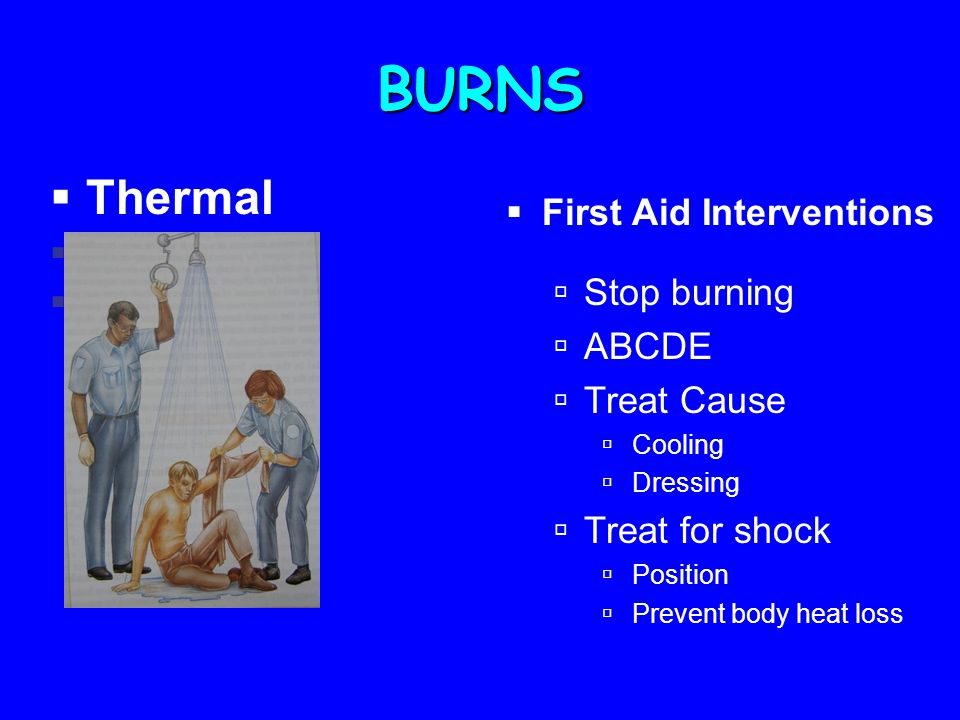 BURNS  Thermal  Chemical  Electrical  Stop burning  ABCDE  Treat Cause  Cooling  Dressing  Treat for shock  Position  Prevent body heat loss  First Aid Interventions
