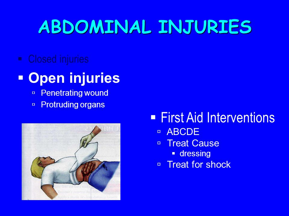 ABDOMINAL INJURIES  Closed injuries  Open injuries  Penetrating wound  Protruding organs  First Aid Interventions  ABCDE  Treat Cause  dressing  Treat for shock