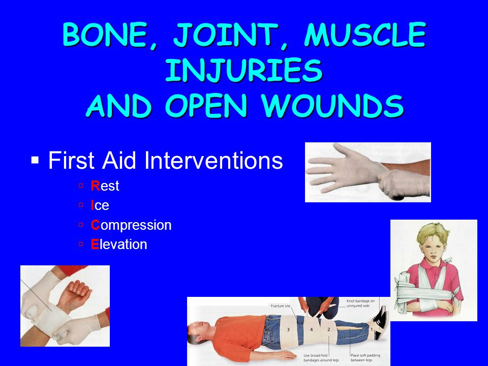 BONE, JOINT, MUSCLE INJURIES AND OPEN WOUNDS  First Aid Interventions  Rest  Ice  Compression  Elevation