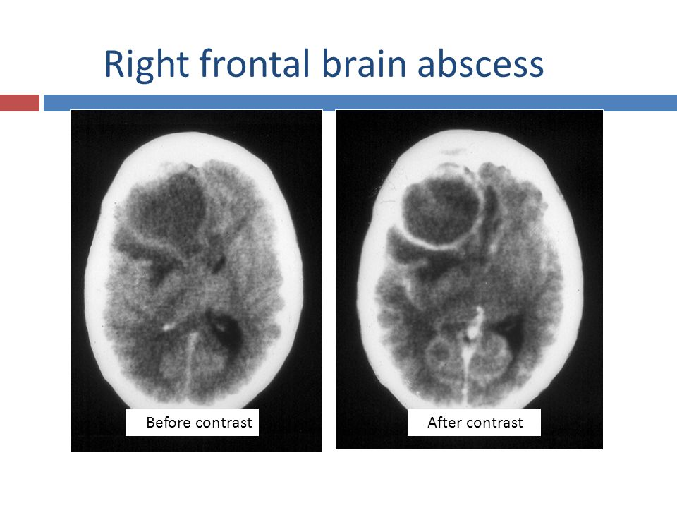 55 Right frontal brain abscess Before contrastAfter contrast