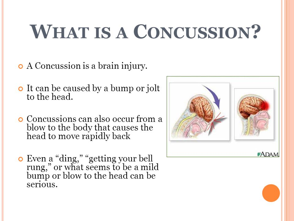 W HAT IS A C ONCUSSION . A Concussion is a brain injury.