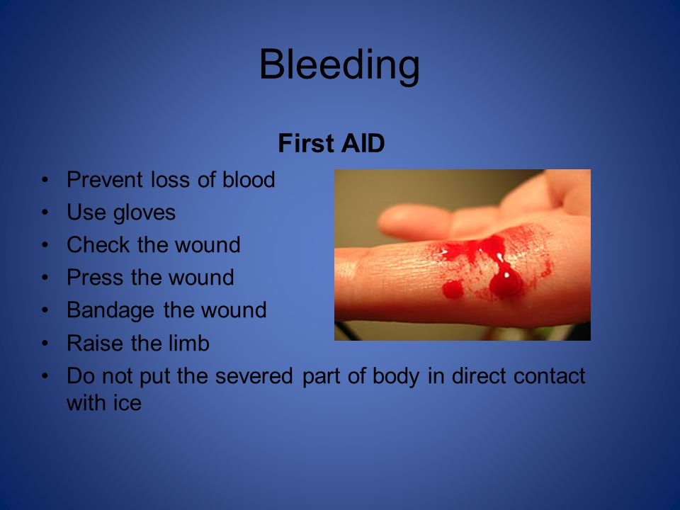 Bleeding First AID Prevent loss of blood Use gloves Check the wound Press the wound Bandage the wound Raise the limb Do not put the severed part of body in direct contact with ice