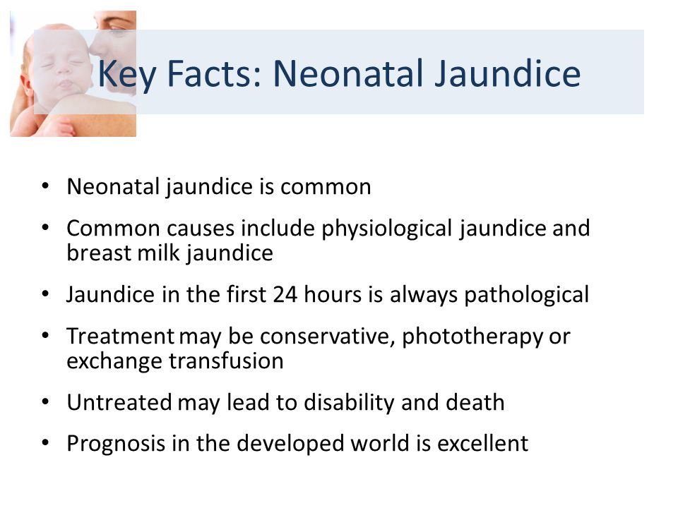 Neonatal jaundice is common Common causes include physiological jaundice and breast milk jaundice Jaundice in the first 24 hours is always pathological Treatment may be conservative, phototherapy or exchange transfusion Untreated may lead to disability and death Prognosis in the developed world is excellent Key Facts: Neonatal Jaundice
