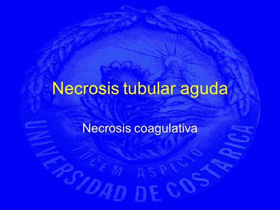 Necrosis tubular aguda Necrosis coagulativa