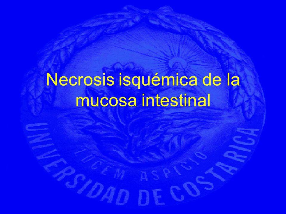 Necrosis isquémica de la mucosa intestinal