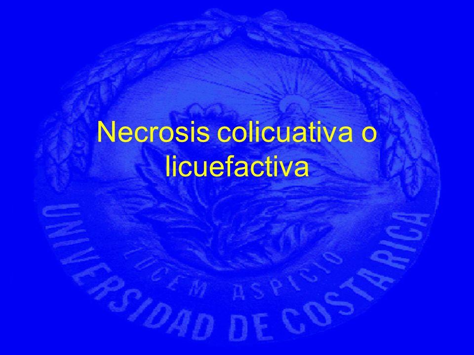 Necrosis colicuativa o licuefactiva