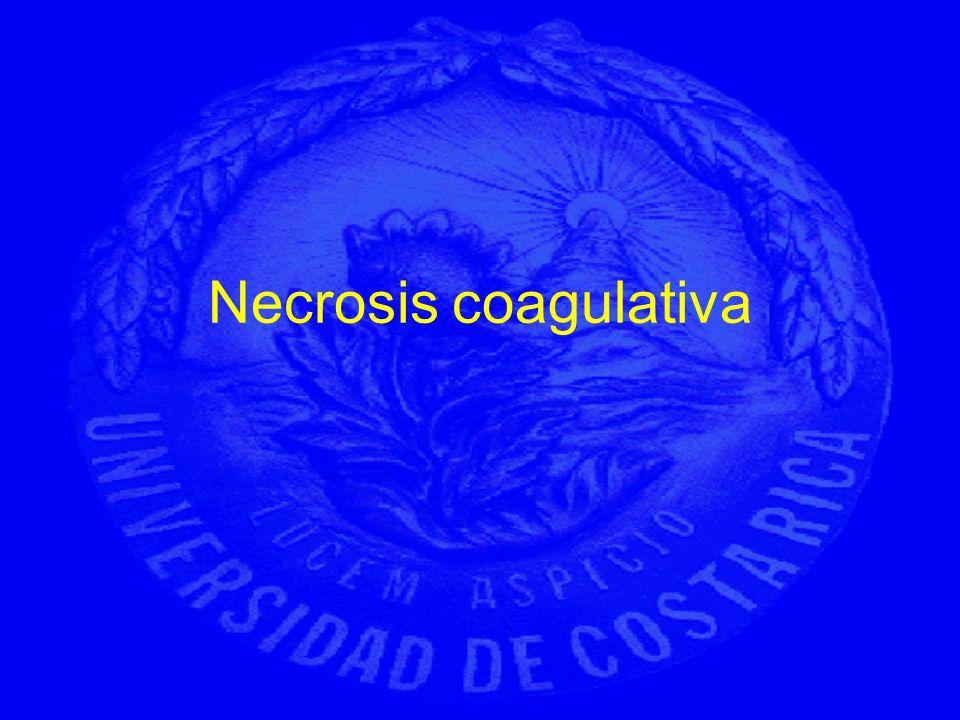 Necrosis coagulativa
