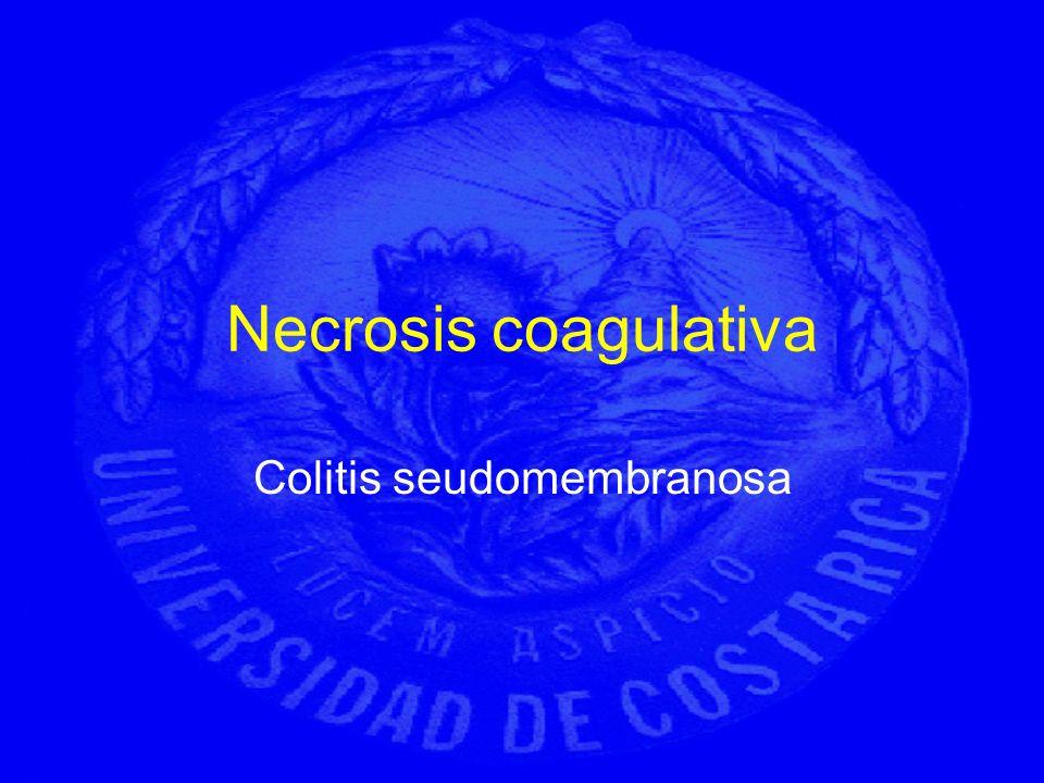 Necrosis coagulativa Colitis seudomembranosa