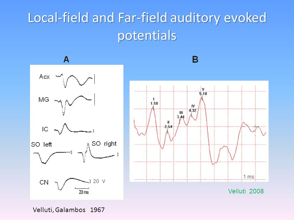 Cortical Auditory Evoked Potentials in Rat Hall and Borbély, 1970