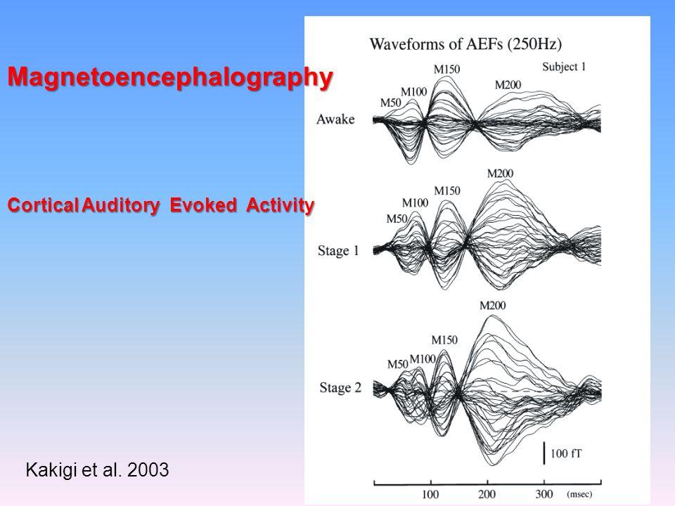 Auditory Cortex fMRI (Portas et al. 2005)
