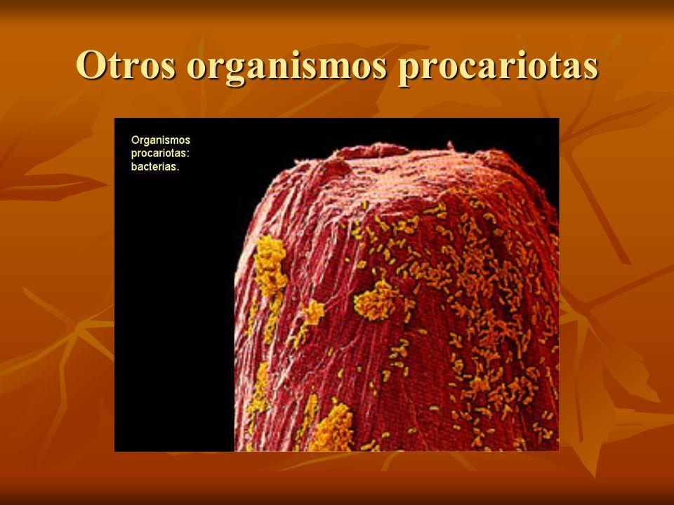 Otros organismos procariotas