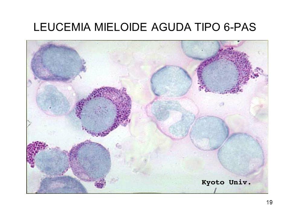 19 LEUCEMIA MIELOIDE AGUDA TIPO 6-PAS