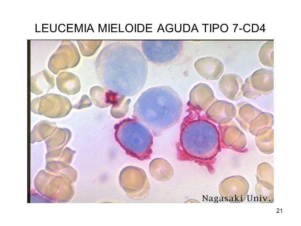 21 LEUCEMIA MIELOIDE AGUDA TIPO 7-CD4