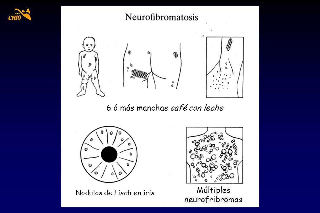 6 ó más manchas café con leche Nodulos de Lisch en iris Múltiples neurofribromas