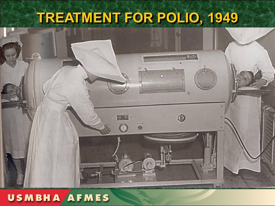 TREATMENT FOR POLIO, 1949