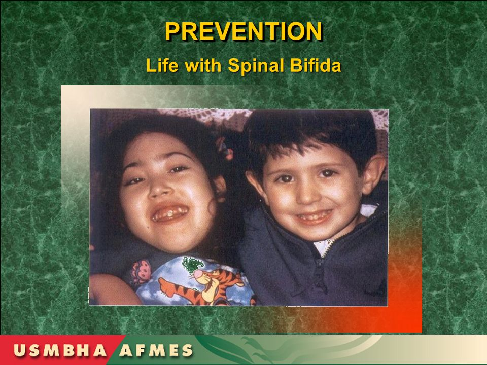 PREVENTIONPREVENTION Life with Spinal Bifida