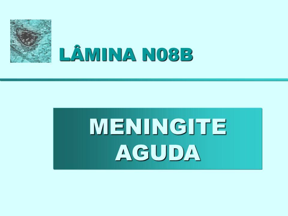LÂMINA N08B – MENINGITE AGUDA Fig. N08B.1: H. E.; 40 x; zoom = 4,0.