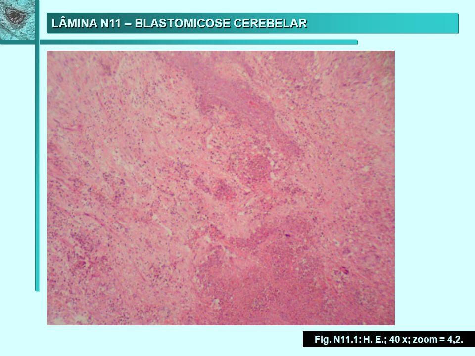 LÂMINA N11 – BLASTOMICOSE CEREBELAR Fig. N11.1: H. E.; 40 x; zoom = 4,2.