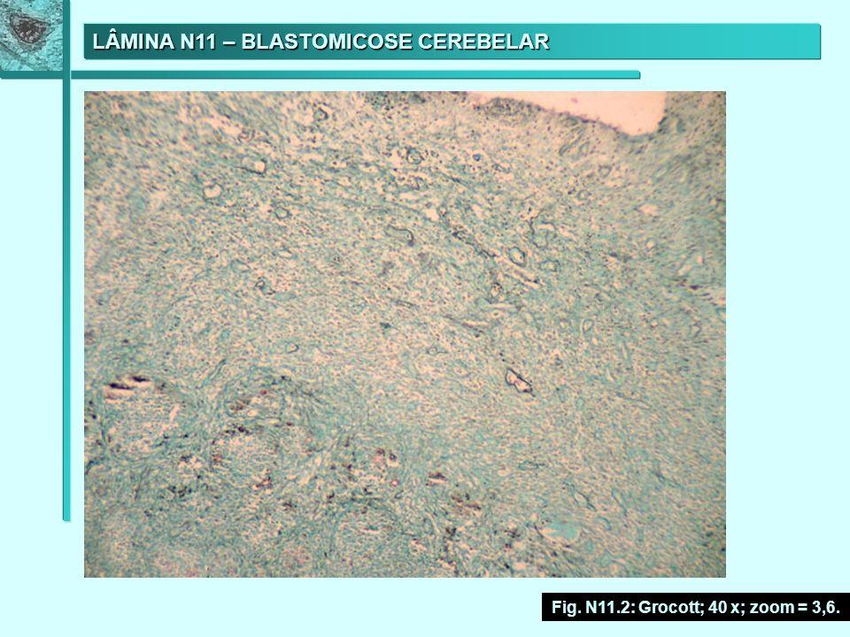 LÂMINA N11 – BLASTOMICOSE CEREBELAR Fig. N11.2: Grocott; 40 x; zoom = 3,6.