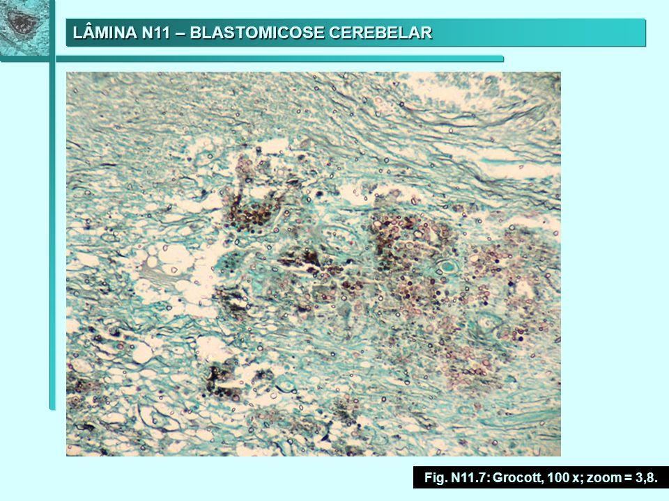 LÂMINA N11 – BLASTOMICOSE CEREBELAR Fig. N11.7: Grocott, 100 x; zoom = 3,8.