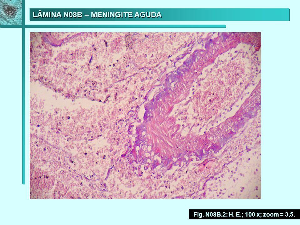 LÂMINA N08B – MENINGITE AGUDA Fig. N08B.2: H. E.; 100 x; zoom = 3,5.