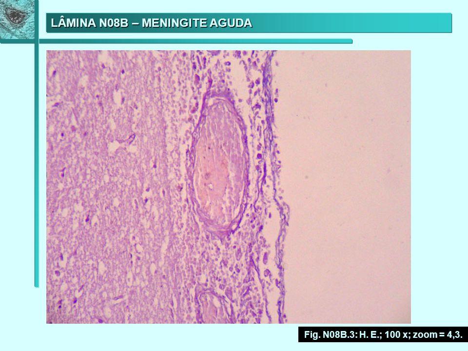 LÂMINA N08B – MENINGITE AGUDA Fig. N08B.3: H. E.; 100 x; zoom = 4,3.