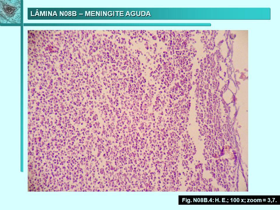 LÂMINA N08B – MENINGITE AGUDA Fig. N08B.4: H. E.; 100 x; zoom = 3,7.
