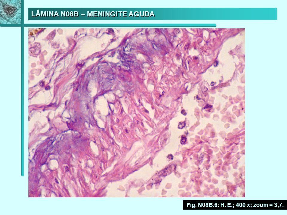 LÂMINA N08B – MENINGITE AGUDA Fig. N08B.6: H. E.; 400 x; zoom = 3,7.