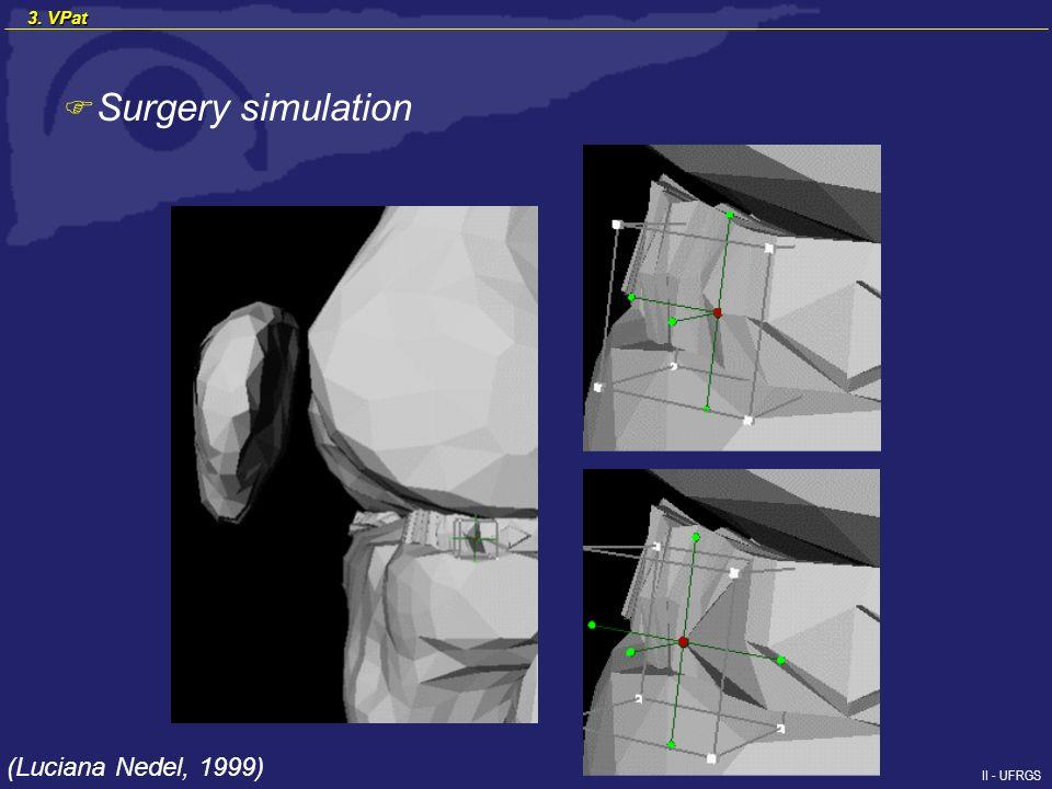 II - UFRGS F Surgery simulation (Luciana Nedel, 1999) 3. VPat