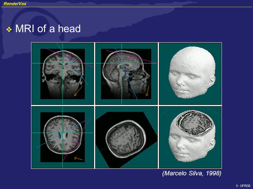 II - UFRGS MRI of a head (Marcelo Silva, 1998) RenderVox RenderVox