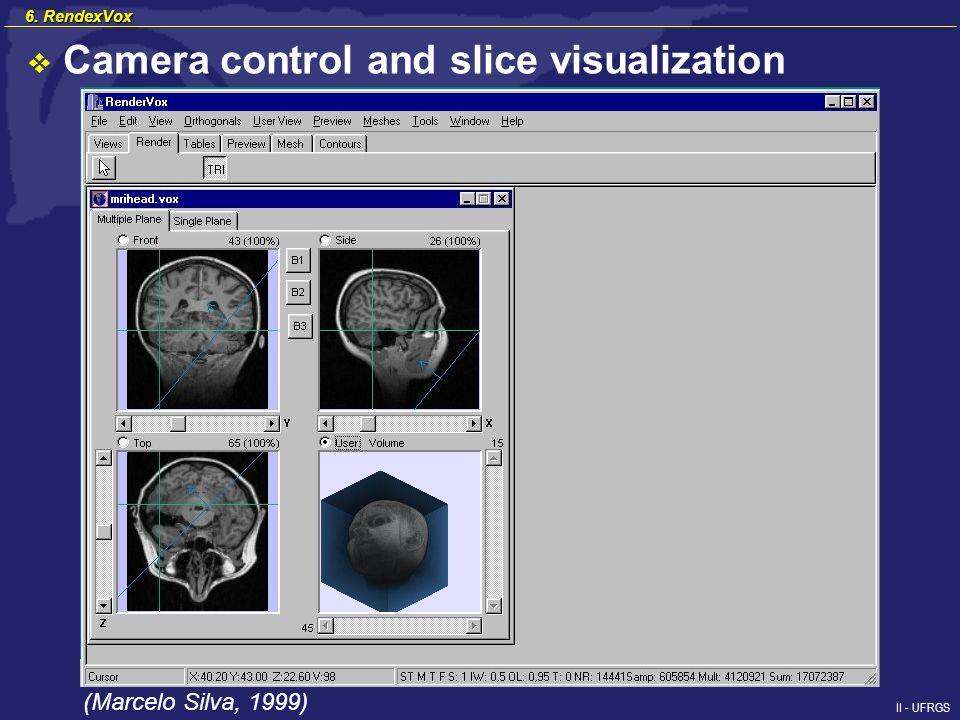 II - UFRGS Camera control and slice visualization (Marcelo Silva, 1999) 6. RendexVox
