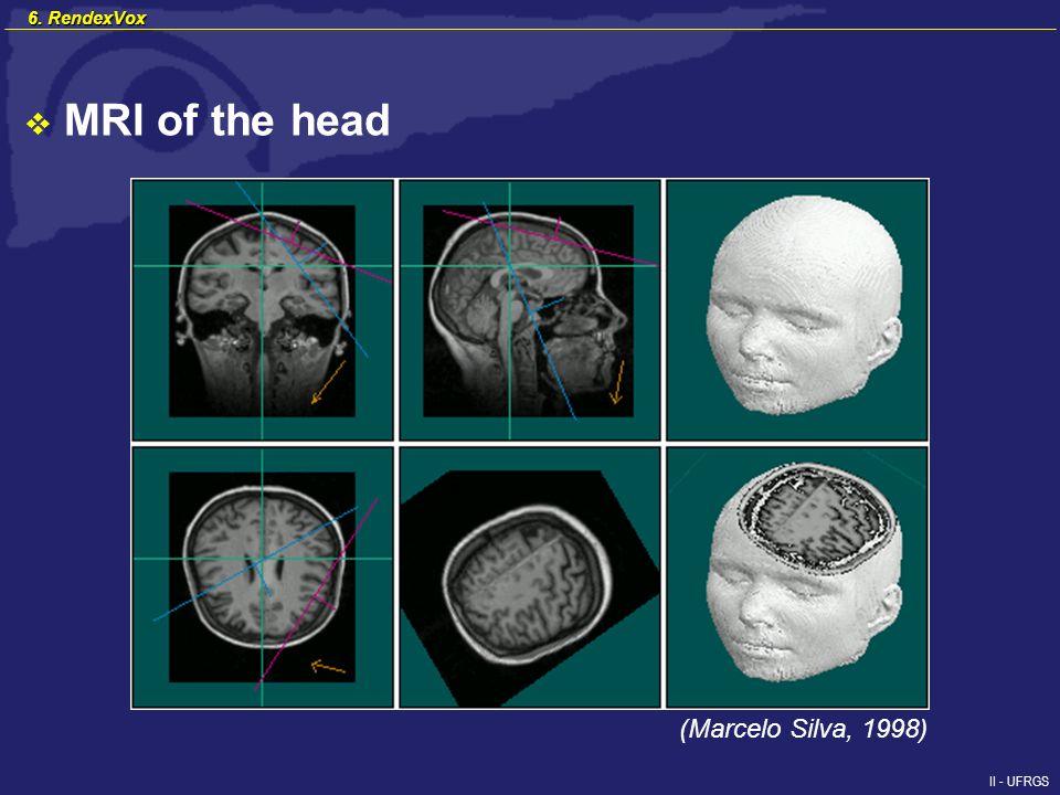 II - UFRGS MRI of the head (Marcelo Silva, 1998) 6. RendexVox
