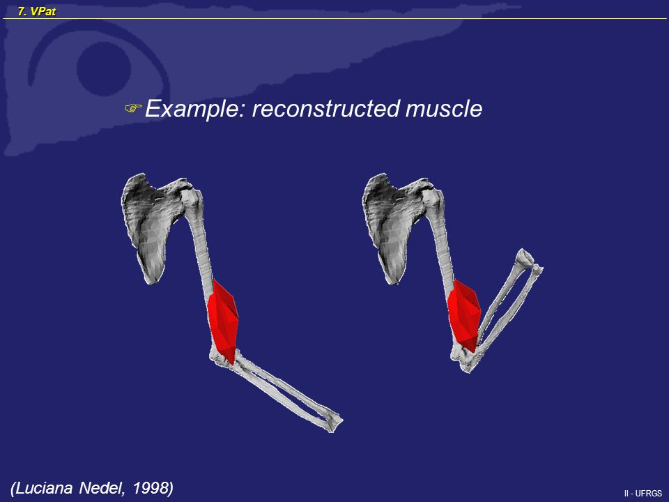 II - UFRGS F Example: reconstructed muscle (Luciana Nedel, 1998) 7. VPat