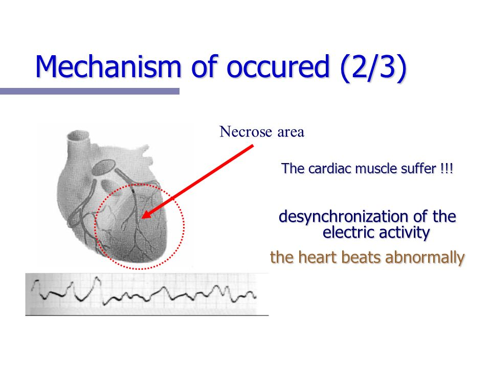 Mechanism of occured (2/3) The cardiac muscle suffer !!.