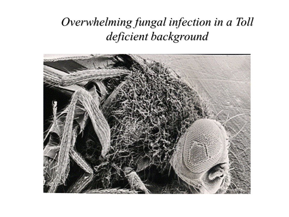 Overwhelming fungal infection in a Toll deficient background