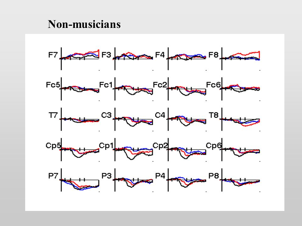 Non-musicians